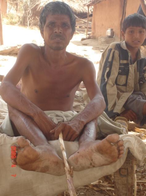 Fakira Veersing Damor,Chitrodiya